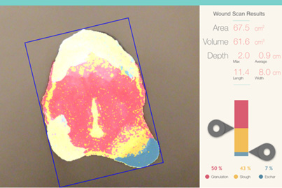 inSight Wound Measurement Results: displays 3D wound measurements, wound bed compositions, wound orientation, as well as the image quality.